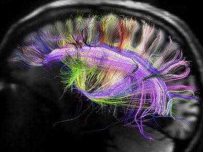Por que é preciso proibir que manipulem nosso cérebro antes que isso seja possível