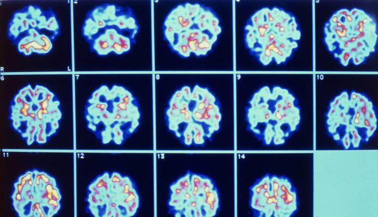 Imagens de paciente com Alzheimer