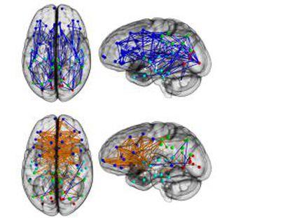O cérebro de mulheres e homens mostra diferente conectividade