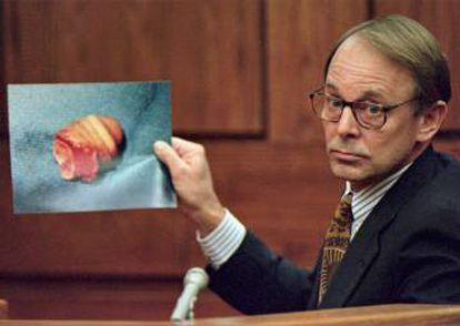 O médico Jim Sehn segura uma foto do pênis mutilado de John Wayne Bobbitt, durante o segundo dia do julgamento de Lorena Bobbitt