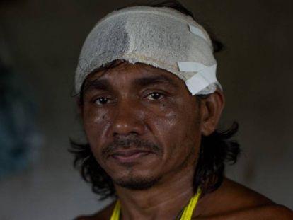 VÍDEO | Os gamella, um povo em busca de sua identidade