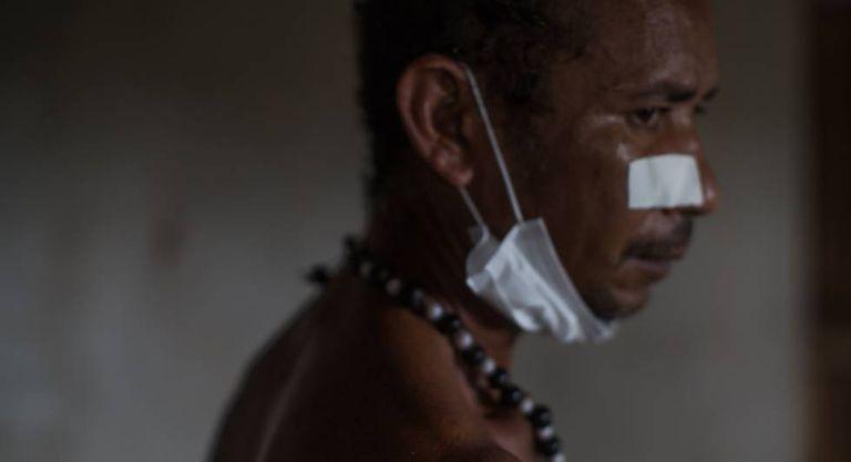 Indígena gamela ferido por duas balas em ataque no último domingo.