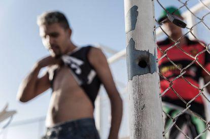 """""""Brugelo"""" Silva, baleado no pescoço, exibe cicatriz. Ao lado, buraco de disparo que matou um de seus amigos."""