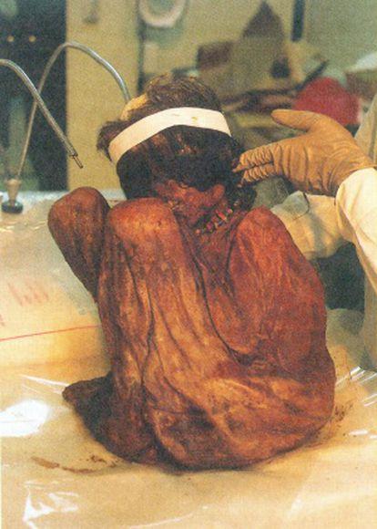 A múmia do Aconcágua.