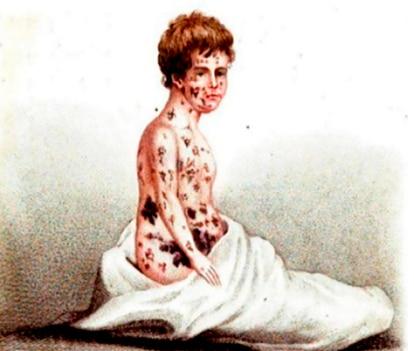 Ilustração do século 19 mostra marcas da varíola.