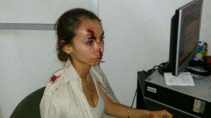 Karla Janeth Silva após a agressão em uma imagem divulgada nas redes sociais.