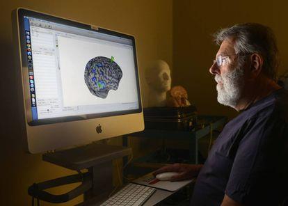 Pesquisador observa imagem de cérebro.