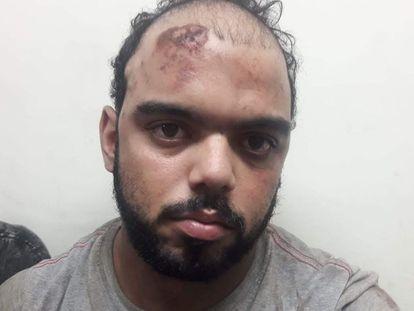 Jefferson Luiz Rangel Marconi logo após ser detido e torturado por forças de segurança no Rio de Janeiro, em 2018.