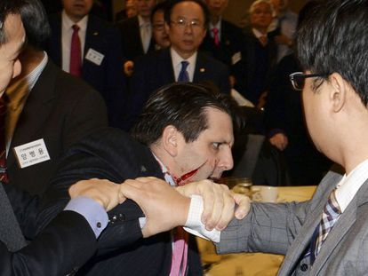 O embaixador Lippert após levar uma facada no rosto.