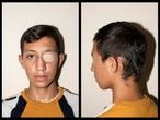 Nicolás Bernal, de 13 años, sufrió un traumatismo craneal durante las protestas por el impacto de un bote de gas lacrimógeno, en Bogotá, Colombia.