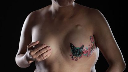 Mulher que realizou mastectomia exibe tatuagem no seio.