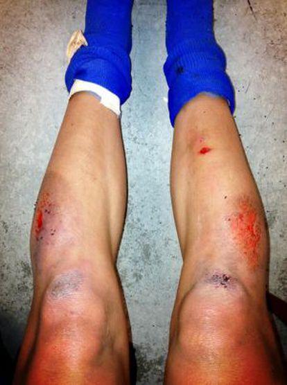 As pernas feridas de uma das jogadoras.