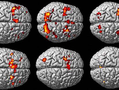 Nova revisão invalida milhares de estudos sobre o cérebro