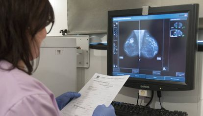 Médica examina uma radiografia de mama.