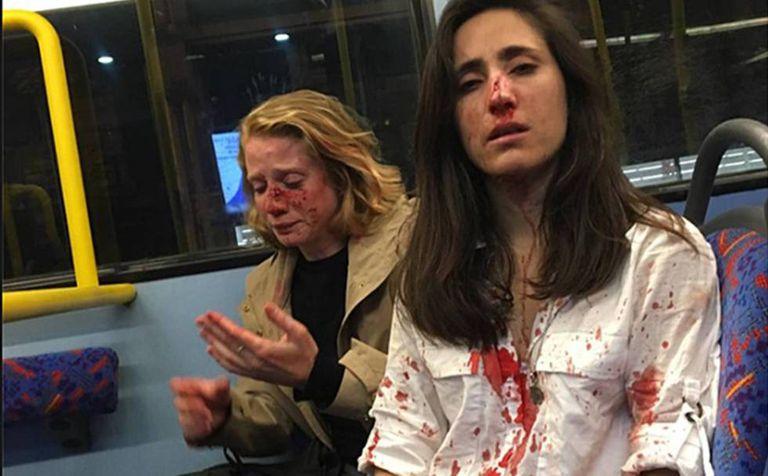 Melania Geymonat (à direita) e sua namorada, Chris, depois da agressão que sofreram em um ônibus de Londres em 30 de maio.