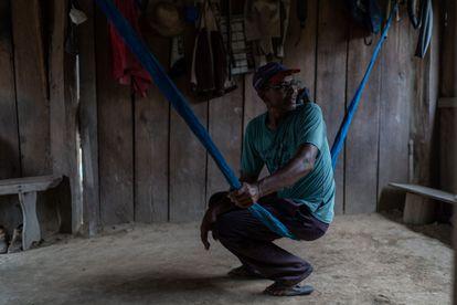 Casemiro, morador da Resex, teve que ser internado após combater um incêndio criminoso na casa de um vizinho