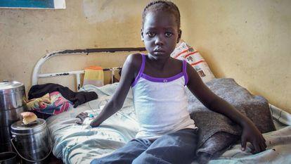 Nyajinma, 6, foi mordida por uma cobra enquanto dormia no do Sudão do Sul.