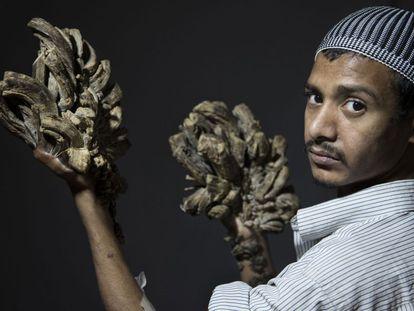 O jovem Abul Bajadar, antes da cirurgia.