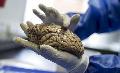 O pesquisador David Aguillón mostra os cérebros do neurobanco do Grupo de Neurociências da Universidade de Antioquia.