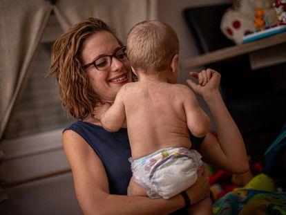 Um dos bebês afetados pelo brote.