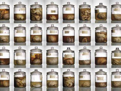 Alguns dos cérebros retratados no livro 'Malformados'.